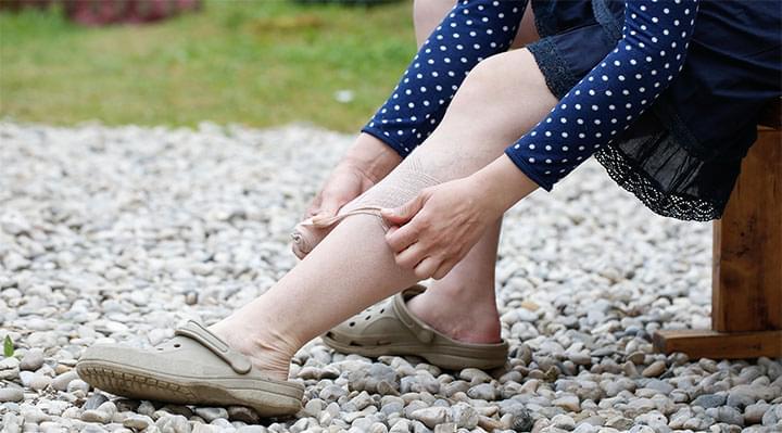 Csúnya, kék erek a lábon - Mit tehetsz visszér ellen? - Szépség és divat   Variconis